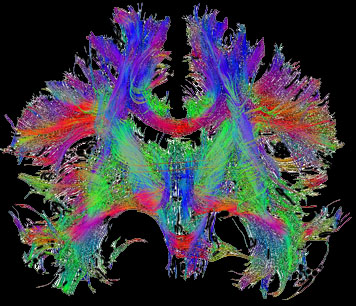 fiber-reconstructions-in-the-brain