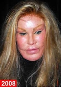jocelyn-wildenstein-bad-plastic-surgery